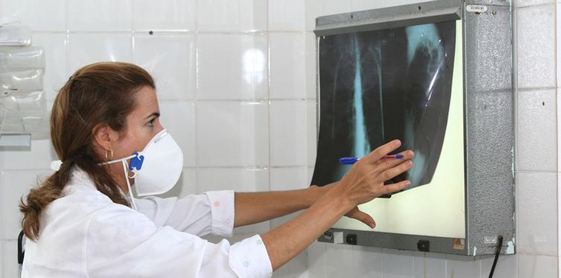 Atenção! Tosse seca e constante é o principal sintoma da tuberculose