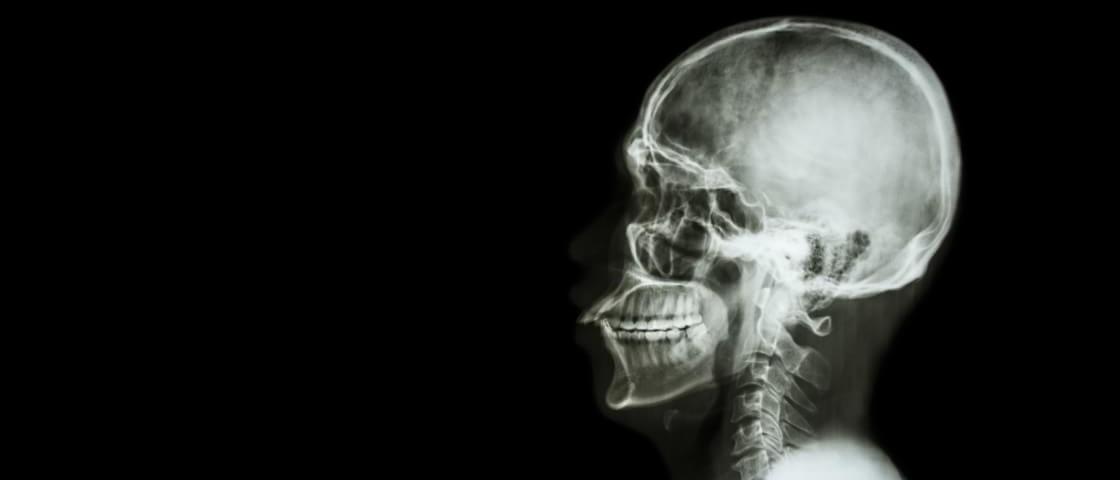 Um raio-x da humanidade atual